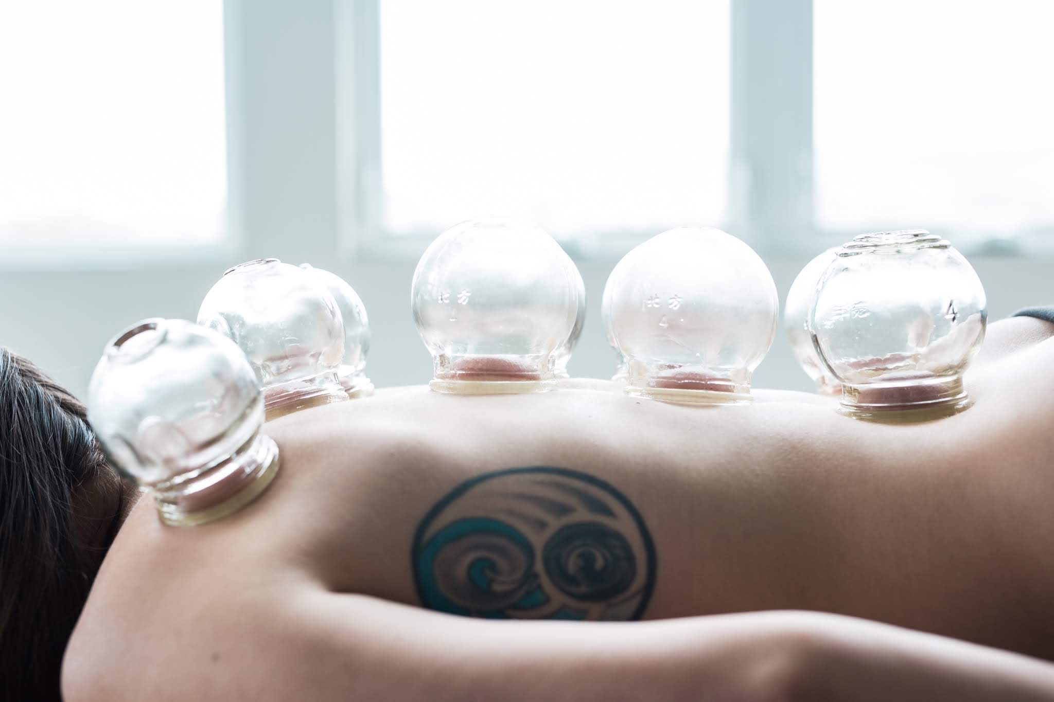 Cupping in Columbus